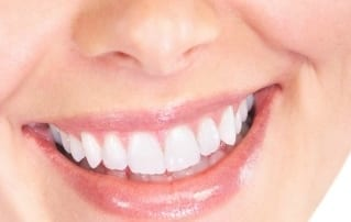 Tips and Recipes for a Bright and Natural White Smile